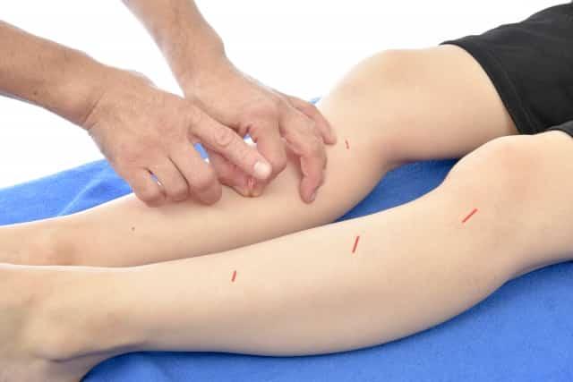 鍼灸施術でツボを刺激して辛い症状を改善します