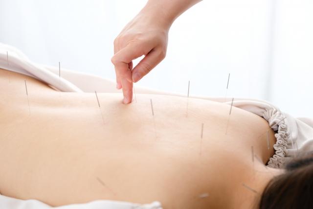 鍼灸施術で血行を促進して症状を改善します