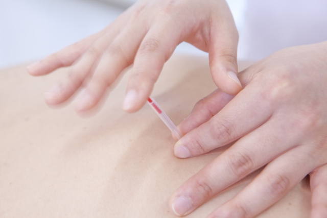 ツボを刺激する施術で全身の血流を促して症状を改善します