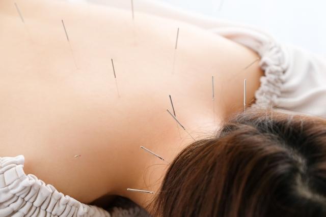 鍼灸施術で自律神経の乱れを整えて症状を改善します