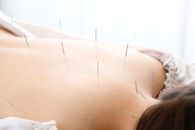 鍼灸施術でツボを刺激して身体の内側から改善します