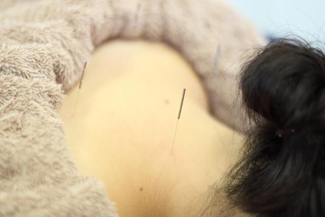 鍼灸施術で自律神経を整えて症状を改善します